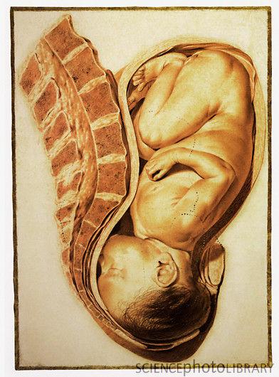 Выделения на 20 неделе отзывы беременности. | 530x392